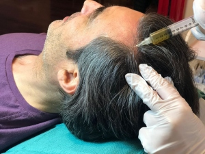 PRP hair restoration scalp injection
