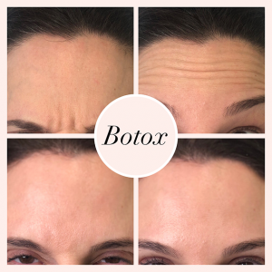 Botox treatment results. Before and after photo.