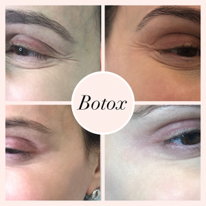 Botox treatment results. Before and after Photos.