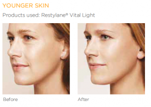 younger looking skin with skin boosters