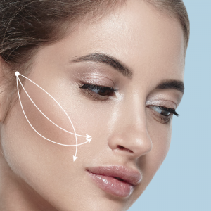 Non surgical face lift with thread lifting