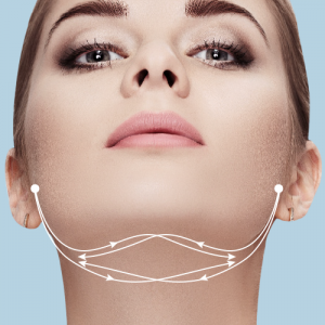 Jawline lift with thread lifting